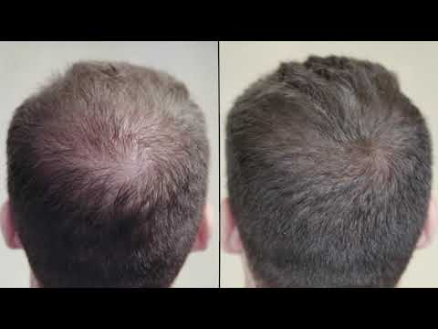 Gofybr - Thin to Thick Hair in Seconds