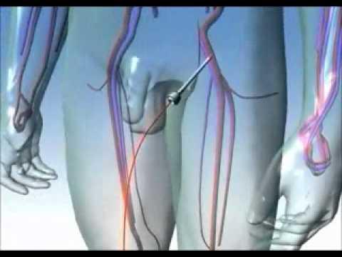 Dr.N Vikramaditya/CAG Animation