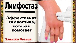 Лимфостаз руки. Как снять отек после ампутации молочной железы