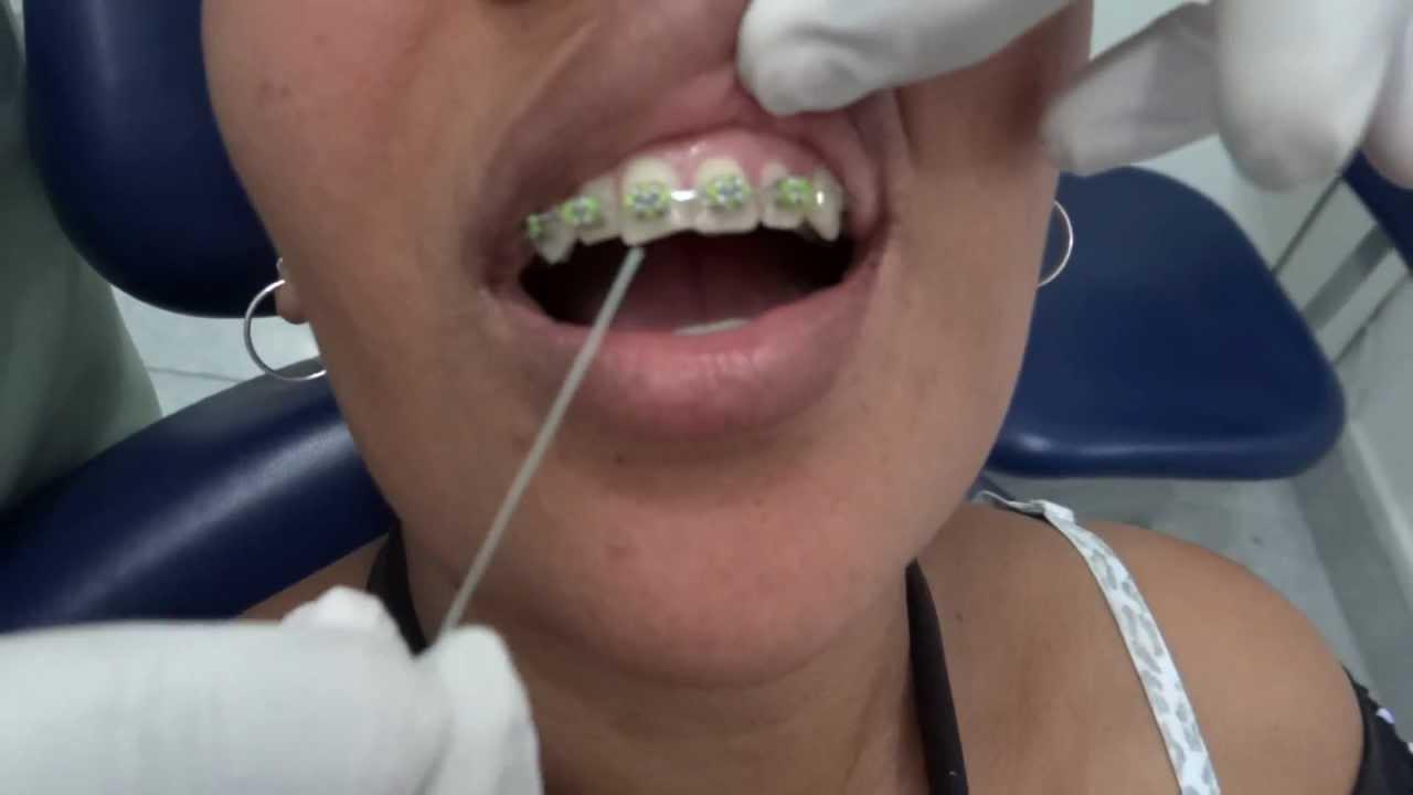 642428dfe Como passar Fio Dental em Aparelho Ortodôntico Fixo - YouTube