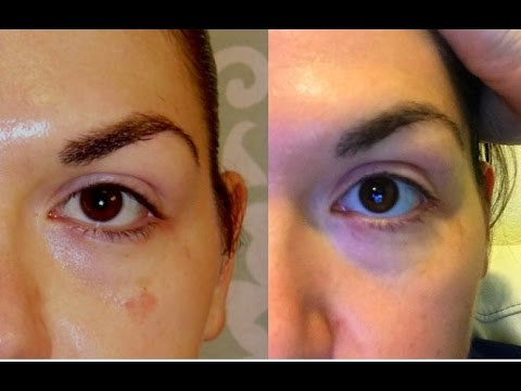 It Works Before And After Hydroquinone Youtube