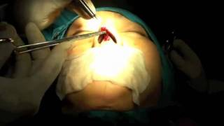 Repeat youtube video ศัลยกรรมจมูกด้วยวิธียืดกระดูก   YouTube