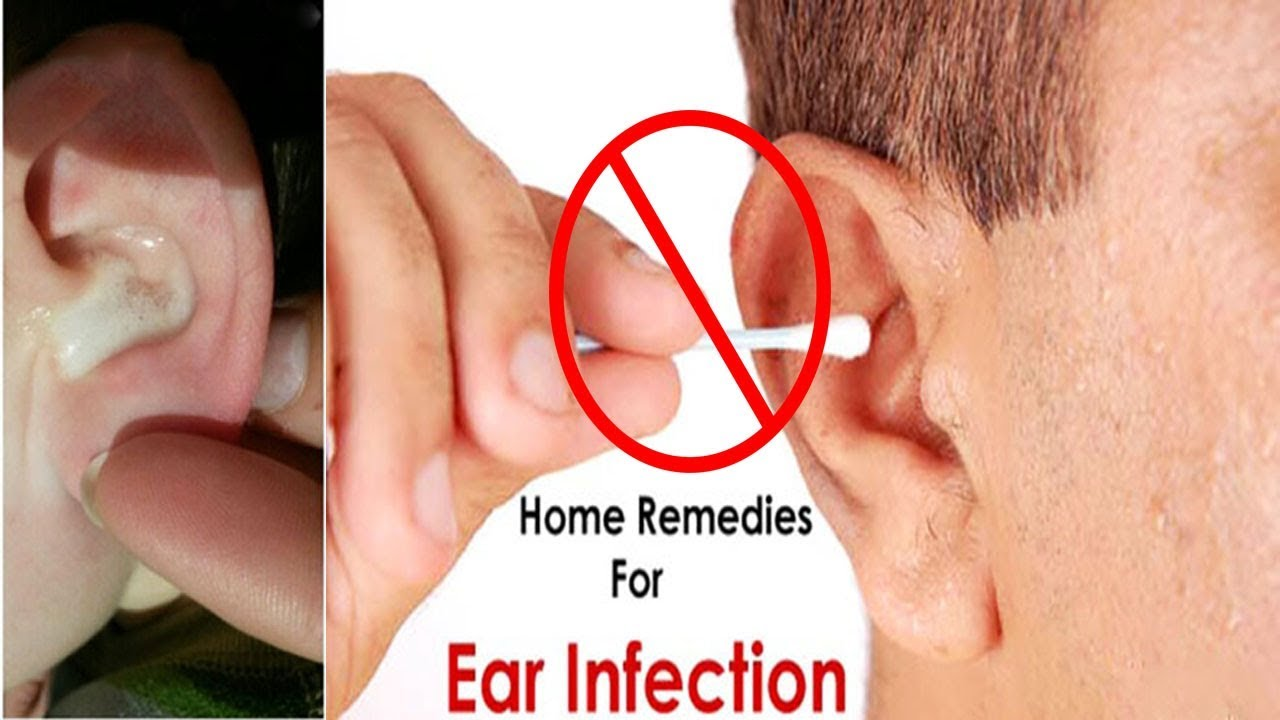 Treat Tinnitus Natural Remedy