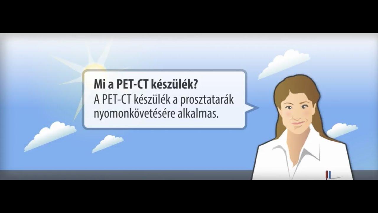 kriogén papilloma oncocitikus papilloma