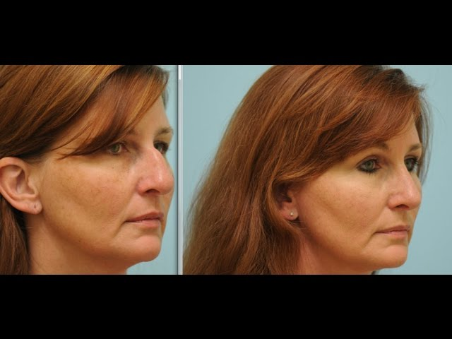 Cosmetic and Functional Rhinoplasty (Nose Job) Testimonial in Dallas, Texas with Dr. Lam