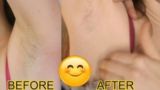 Philips Lumea  IPL  Review - Permanent At Home Hair Removal THAT WORKS! [NOT SPONSORED] - PICS