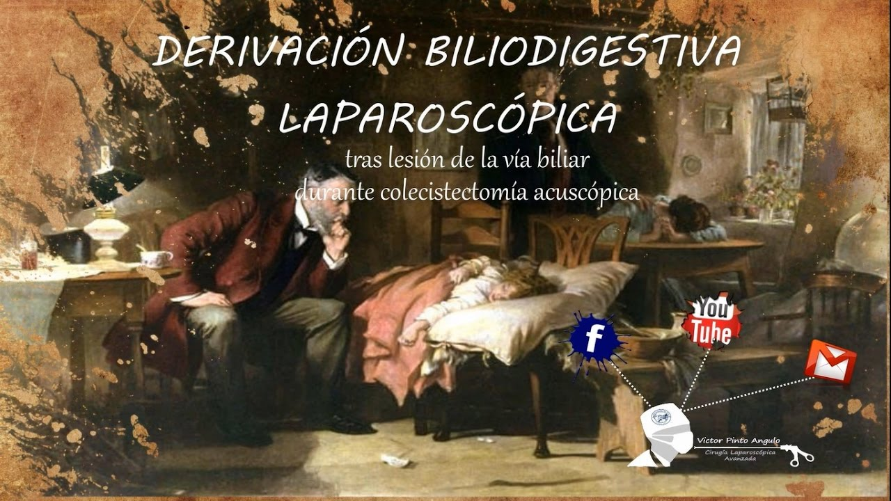 DERIVACIÓN BILIODIGESTIVA LAPAROSCÓPICA (01) - YouTube