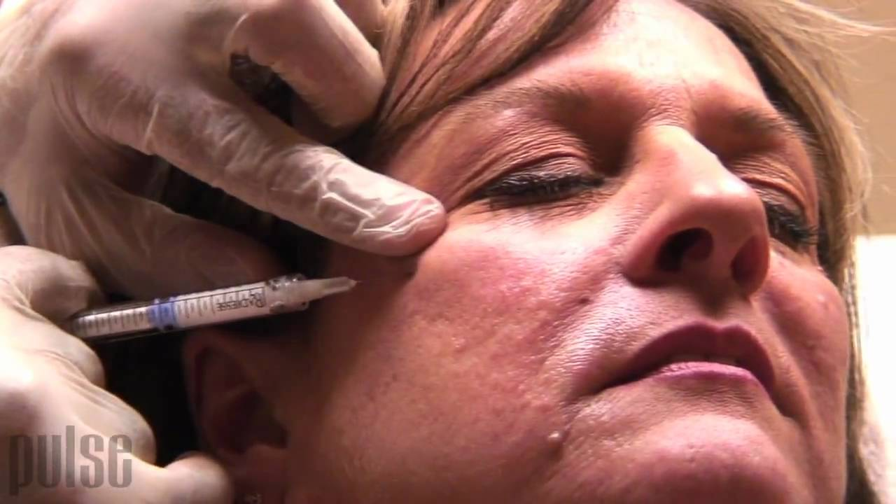 Radiesse Injections Cheek lift Procedure Before and After Euro Med Spa