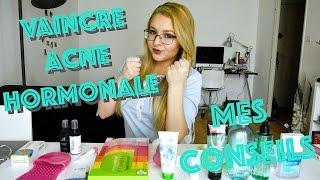 Combattre l'acné hormonale : Mes Conseils !