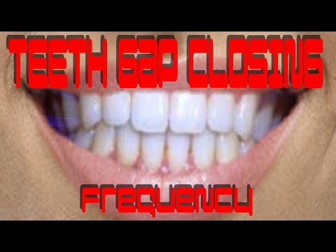 Teeth Gap Closing Frequency - Binaural Beat Natural Healing Subliminal