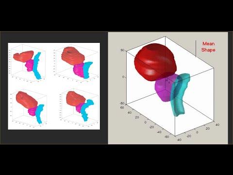 DIP Lecture 25: Active shape models