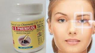 Chloramphenicol Eye Ointments Uses , Benefits क्लोरेंपनीकोल अनगिनत उपयोग जानकर आप चौक जायेंगे ..!