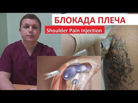 Болит рука после блокады