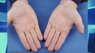 Xanthoma – Could it Happen to You?
