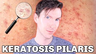 How to treat keratosis pilaris with this simple drugstore skincare routine. Hey guys and welcome bac.