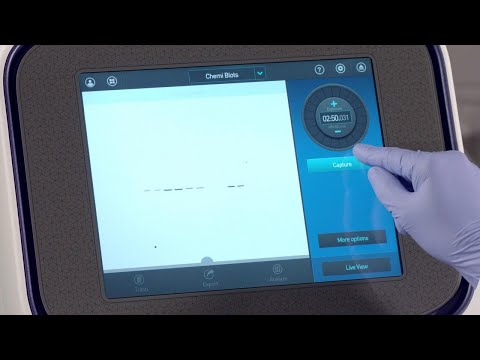 How to Capture Images with Invitrogen iBright Imaging System