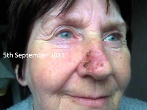 Skingraft Timelapse
