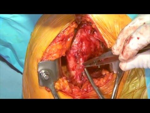 Anatomic Total Shoulder Arthroplasty (Shoulder Replacement)