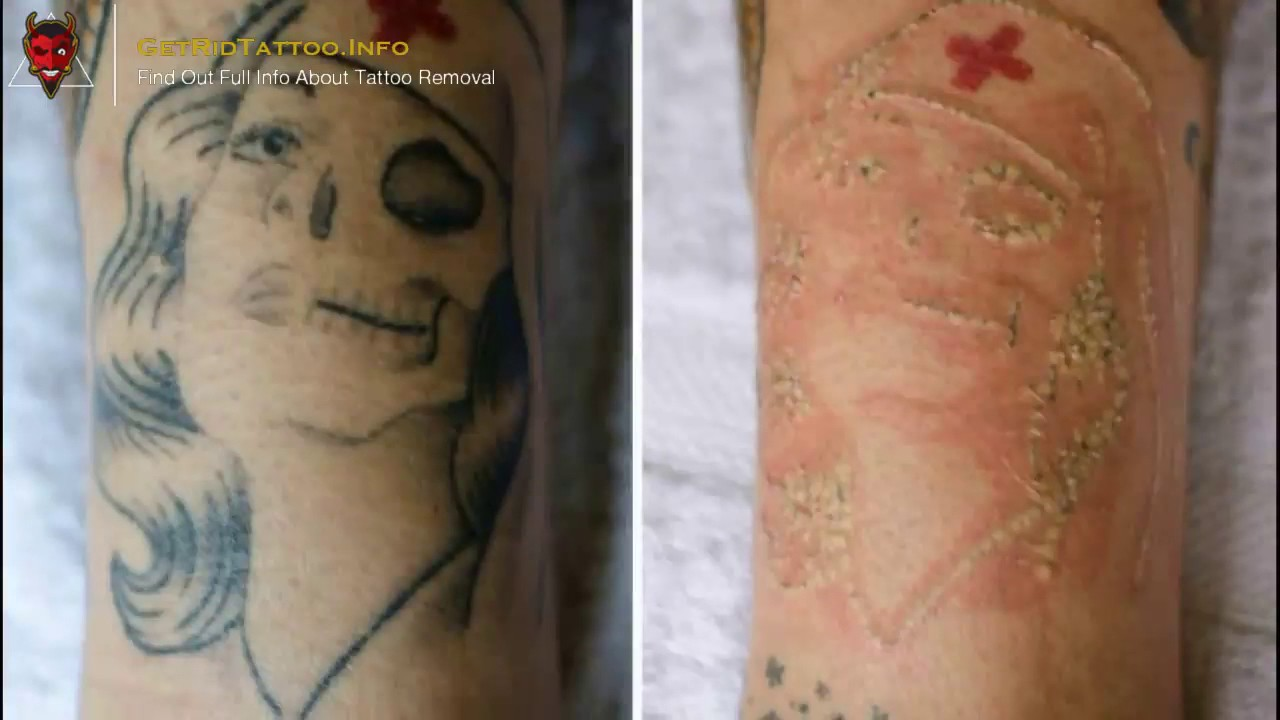 👹 Saline Tattoo Removal – Everything you need to learn about tattoo ...