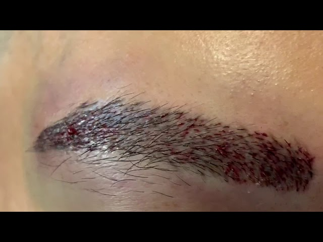 Asian FUE Eyebrow Hair Transplant Close-Up Immediately After