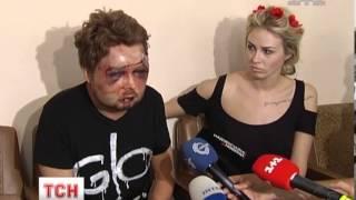 Ідеолога FEMEN жорстоко побили невідомі