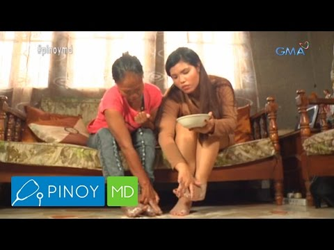 Pinoy MD: Tips to get rid of athlete's foot