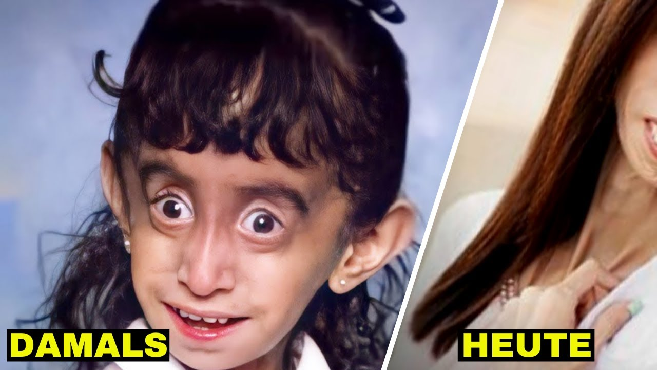 Download Als Kind wurde sie für ihr Aussehen gehänselt - Schau, was mit 32 aus ihr geworden ist
