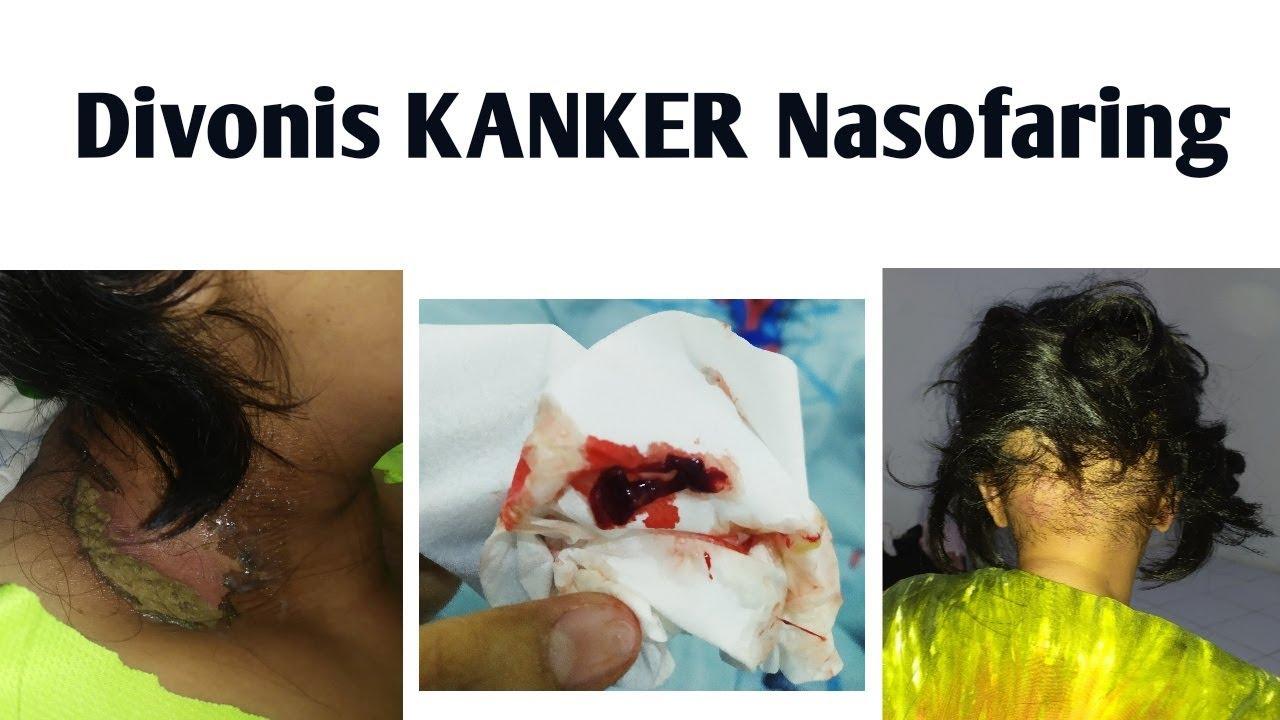 Kanker Nasofaring - YouTube