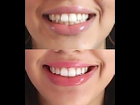 Como Clarear Os Dentes Em Casa Com Gel Super Barato Menos De R 35 00