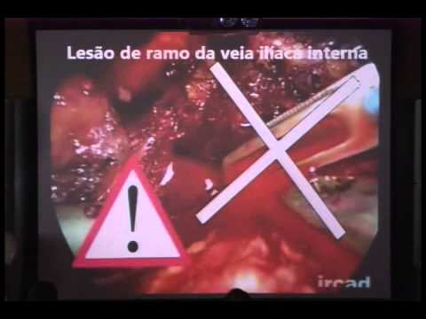 Complicações em Vídeocirurgia Colorretal - Carlos Augusto Real Martinez