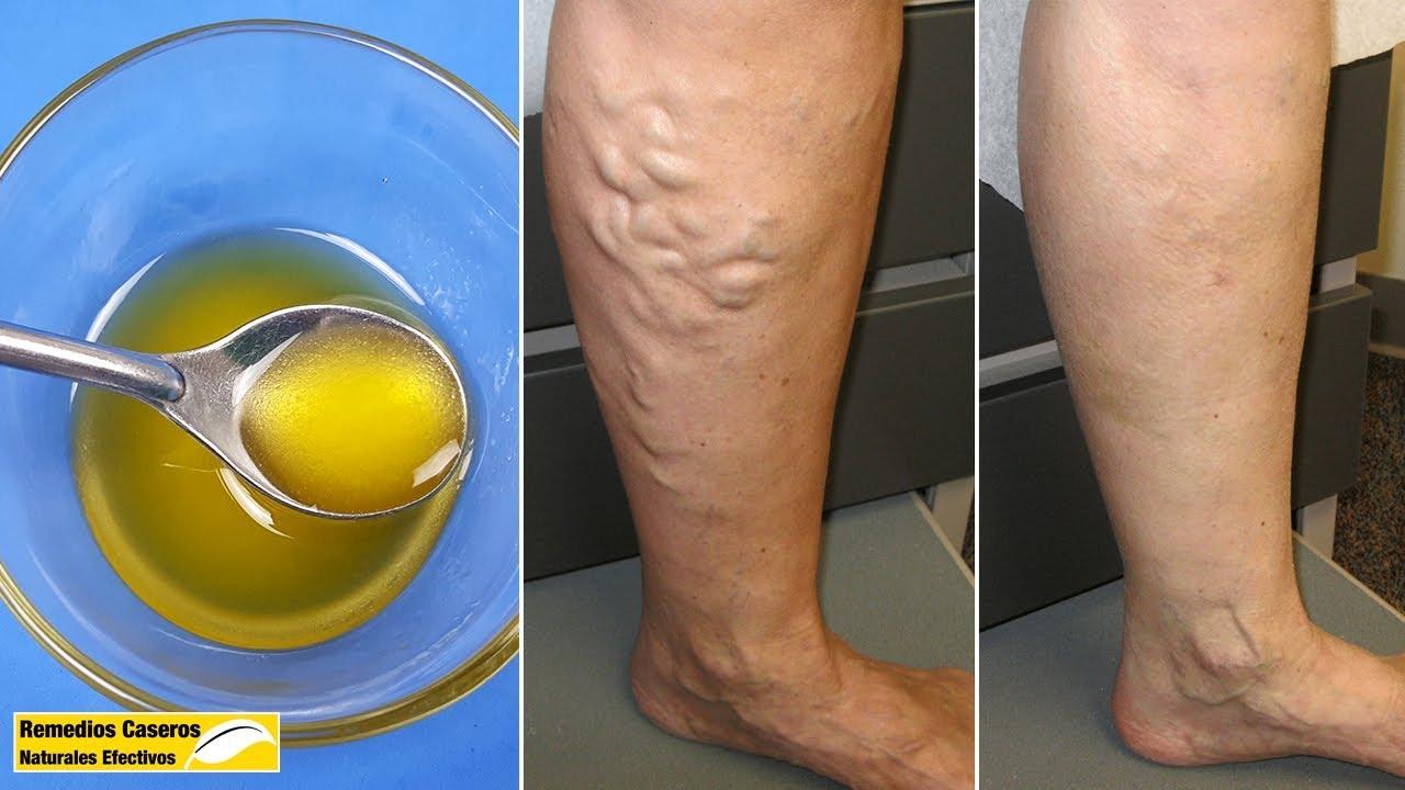 repshok cu vene varicoase trata vene varicoase înainte sau după sarcină