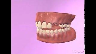 Augmentation osseuse par régénération osseuse guidée