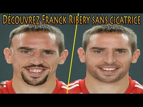 Découvrez Franck Ribéry sans cicatrice