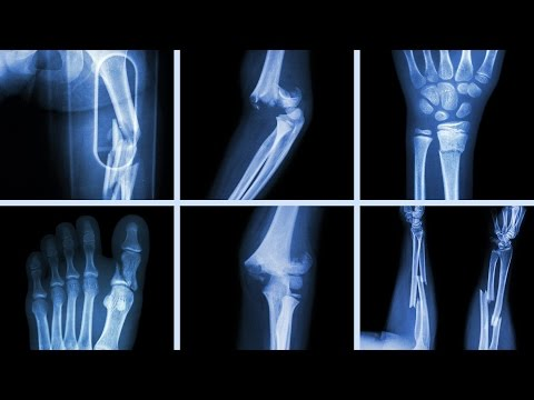 Thumbnail: What Happens To Your Body When You Break A Bone