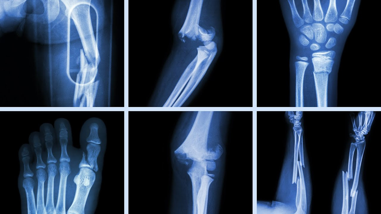 What Happens To Your Body When You Break A Bone Youtube