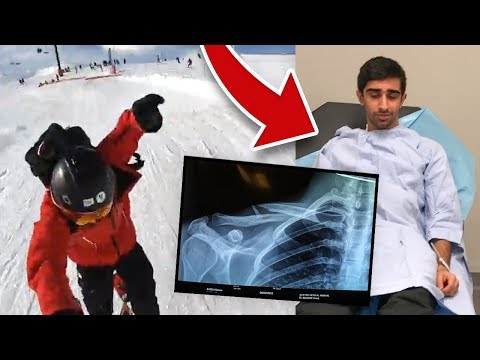 I BROKE MY COLLAR BONE - *LIVE FOOTAGE*