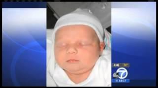Beta blockers used to make babies' birthmarks go away