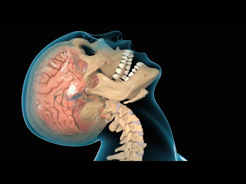 Brain Trauma Scientists Turn Their >> Concussion Traumatic Brain Injury Tbi Youtube