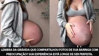 Lembra da grávida que compartilhou fotos de sua barriga com preocupação? Sua experiência está longe