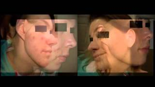 Differin® (adapalene) for Acne: Before and After