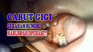 Obat Sakit Gigi Untuk Anak Alami dan Apotik Paling Ampuh Sakit gigi pada anak merupakan masalah umum.
