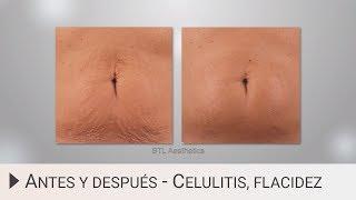 Antes y Después: Tratamiento Flacidez, Celulitis y Grasa Localizada