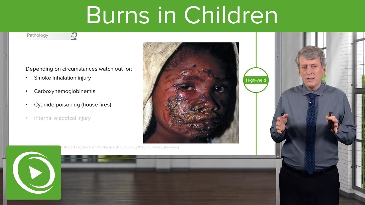 Burns in Children – Pediatrics | Lecturio