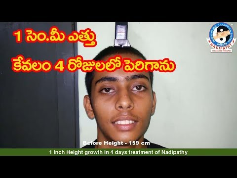 1 Inch Height growth in 4 days treatment of Nadipathy