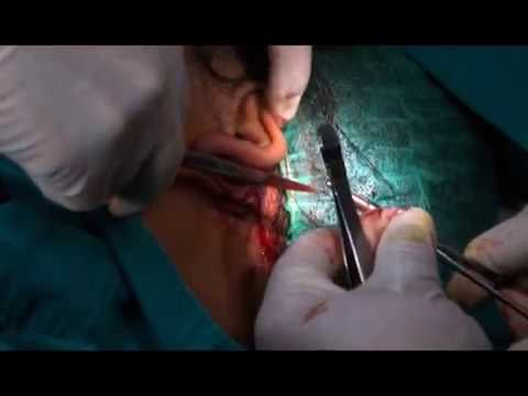 Medical Video: Rhinoplasty+Fat graft