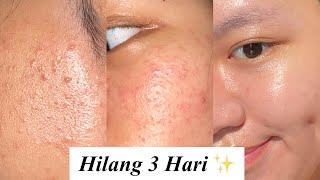 My Skincare Routine utk Bruntusan