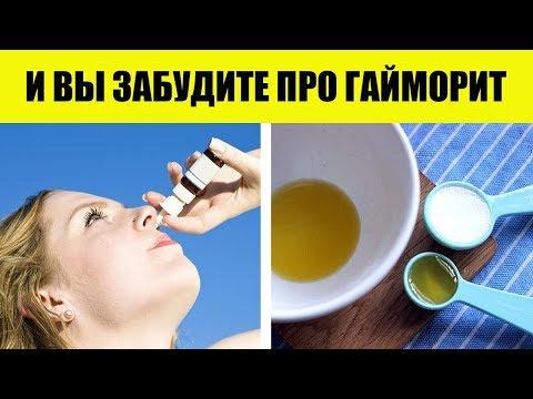 Как вылечить гайморит в домашних условиях. Рецепт с содой