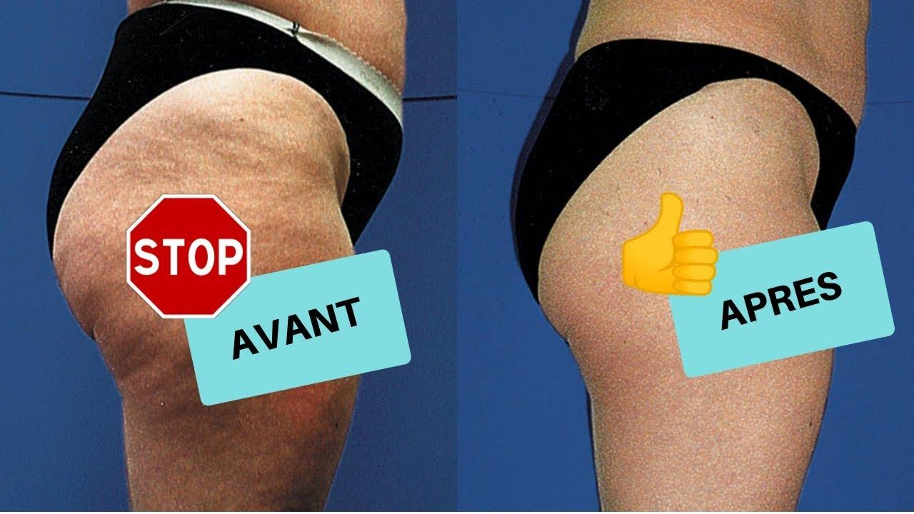 La Ventouse Anti-Cellulite - YouTube