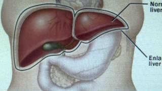 Rife fréquences, maladie du foie