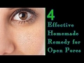 Effective homemade remedy for open pores on face Hindi How to close Open Pores on Face Permanently